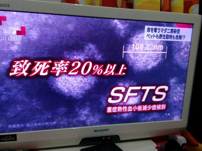 NHK クローズアップ現代マダニ